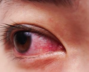 Close up of pink eye